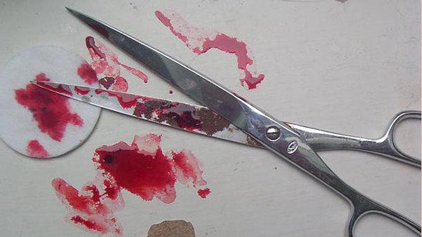 Злоумышленник нанес двум знакомым многочисленные травмы канцелярскими ножницами. Фото: новыйкачканар.рф