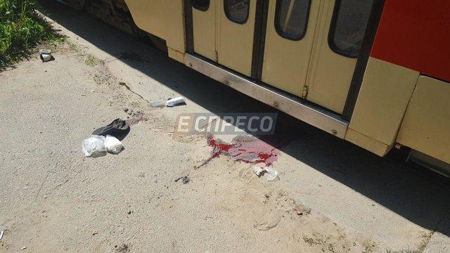 ВКиеве мужчина упал под трамвай