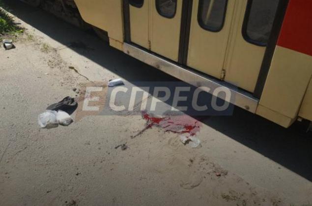 ВКиеве трамвай отрезал мужчине пальцы