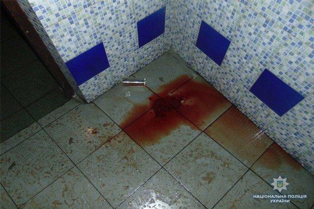 В киевском ресторане мужчине порезали шею бритвой, фото-3